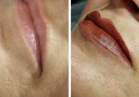 Birmingham Permanent Makeup Lips 1