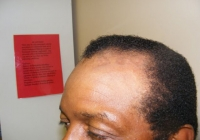 Birmingham Permanent Makeup Reconstruction medial related Pigmentation Correction Before